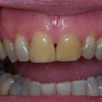 Caso Clinico 1: Discromia molto evidente nei due incisivi centrali superiori