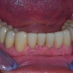 Caso Clinico 3: Riabilitazione delle due arcate mediante ponti in metallo ceramica, corone e faccette in ceramica integrale emax
