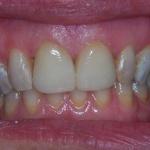 Caso Clinico 1: Riabilitazione dei due incisivi centrali mediante corone in ceramica integrale emax